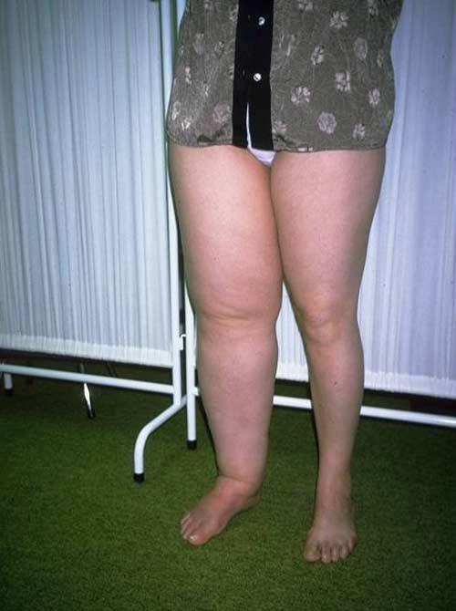 Причина геммороя варикоз нижних конечностей